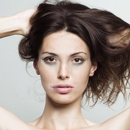 suavitas trattamenti cura pelle