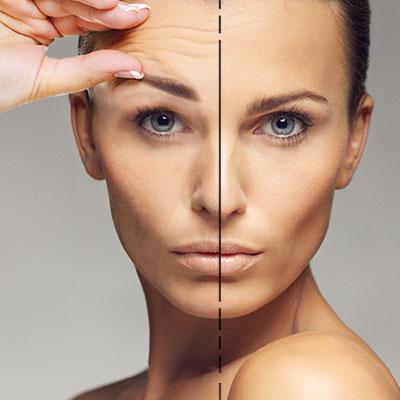 effetto botox