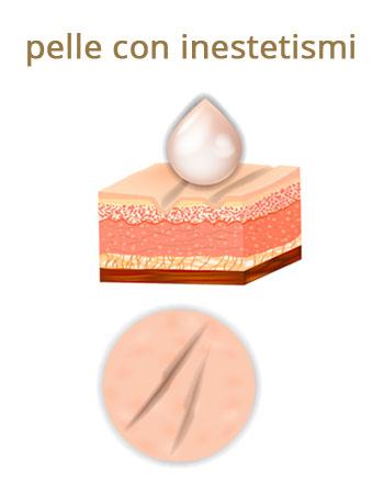 pelle con inestetismi